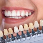 Navigating The Aisle Of Confusion To Whiten Your Teeth
